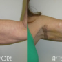 Dr. Zwiefler arm lift before after